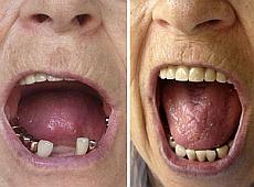 Eine Zahnzusatzversicherung - macht sicherlich Sinn